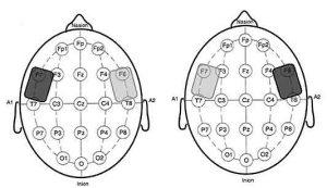 La Transcranial Direct Current Stimulation potenzia i processi creativi e migliora le prestazioni cognitive