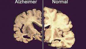 C'è un legame tra Alzheimer e smaltimento della spazzatura cerebrale