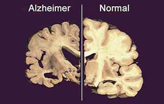 Two blood tests predict Alzheimer's disease (2020-05-20)