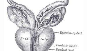 Tumore alla prostata: chi preferisce vivere meglio, chi più a lungo