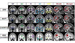 Demenza frontotemporale: una nuova risonanza magnetica ne facilita la diagnosi