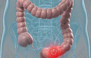 tumore prostata sotto i 40 anni 2016