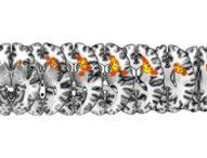 Asportazione dei tumori cerebrali: individuato uno dei centri del controllo cognitivo nell'uomo (02/09/2019)