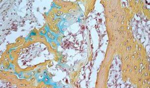 Nuova tecnica per rigenerare le cartilagini delle articolazioni (24/10/2020)