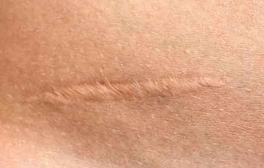 Senza cicatrici: scoperto perchè si creano e come evitarle (04/05/2021)